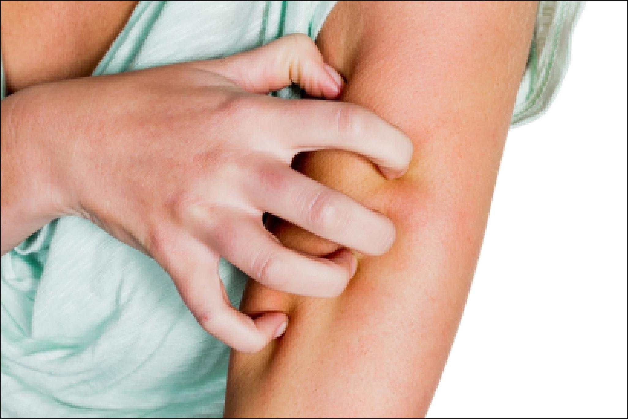 Как избавиться от аллергии народными средствами в домашних 16